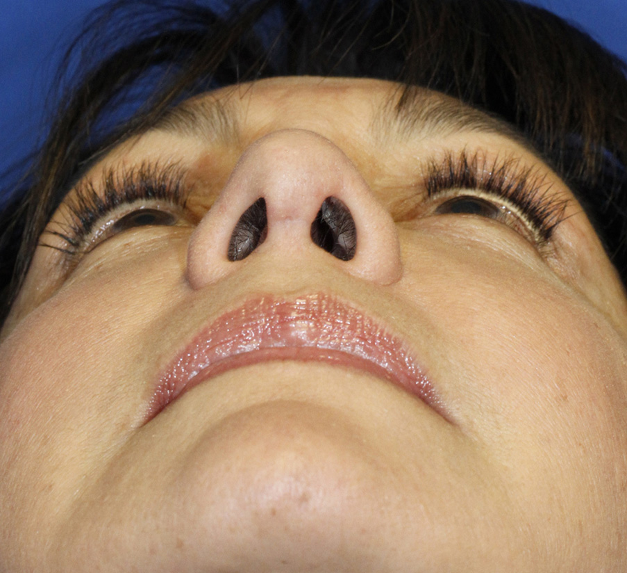 After rhinoplasty base photo