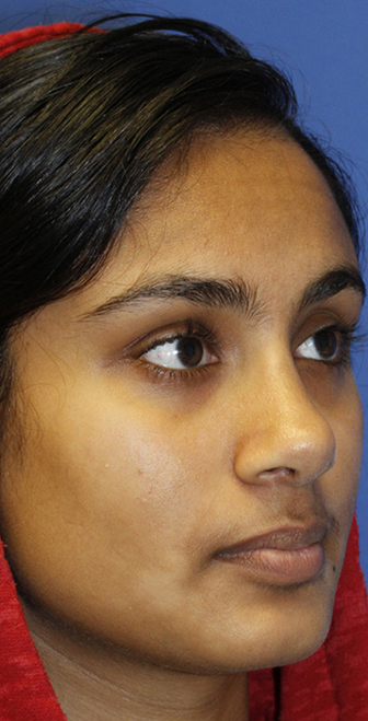 After rhinoplasty right Oblique
