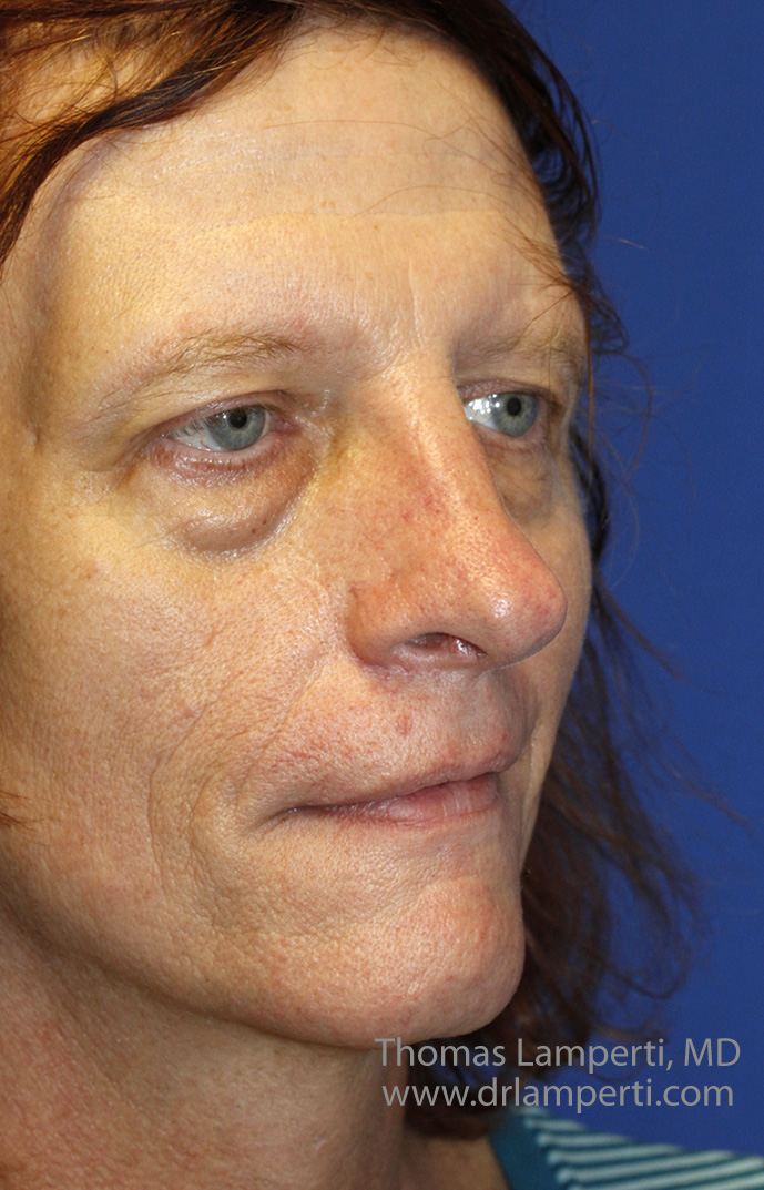 After Feminization Rhinoplasty Oblique
