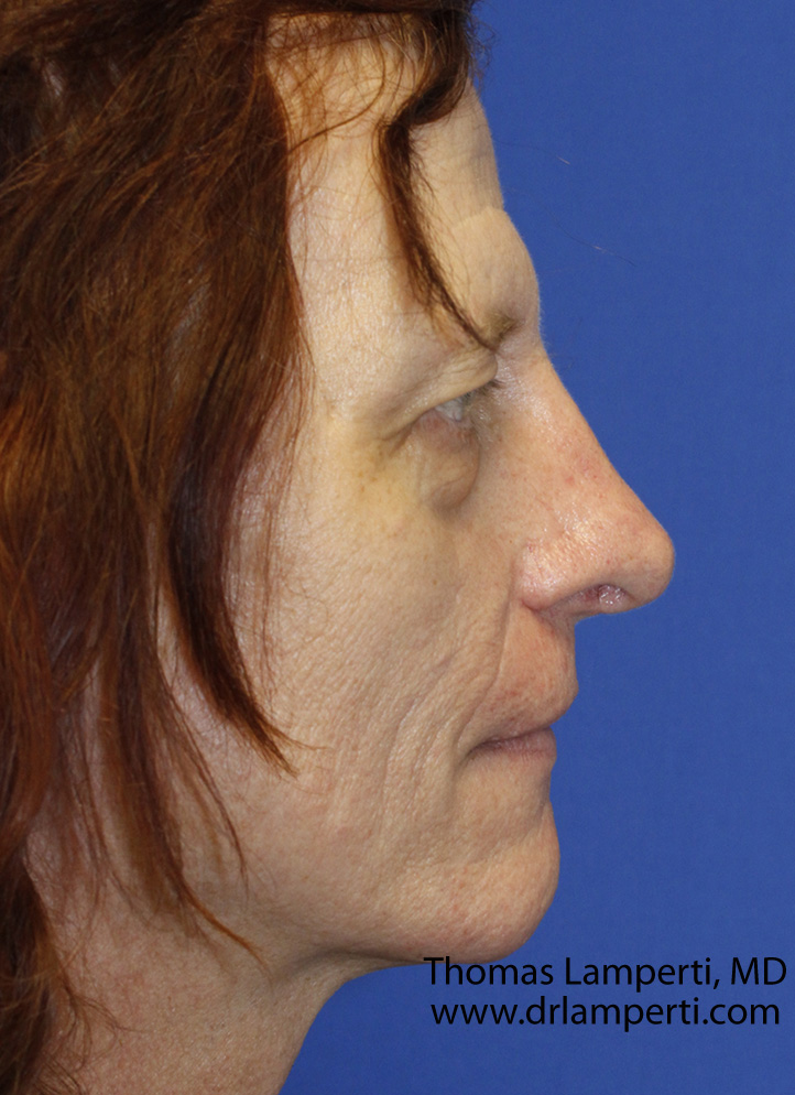 After Feminization Rhinoplasty Profile