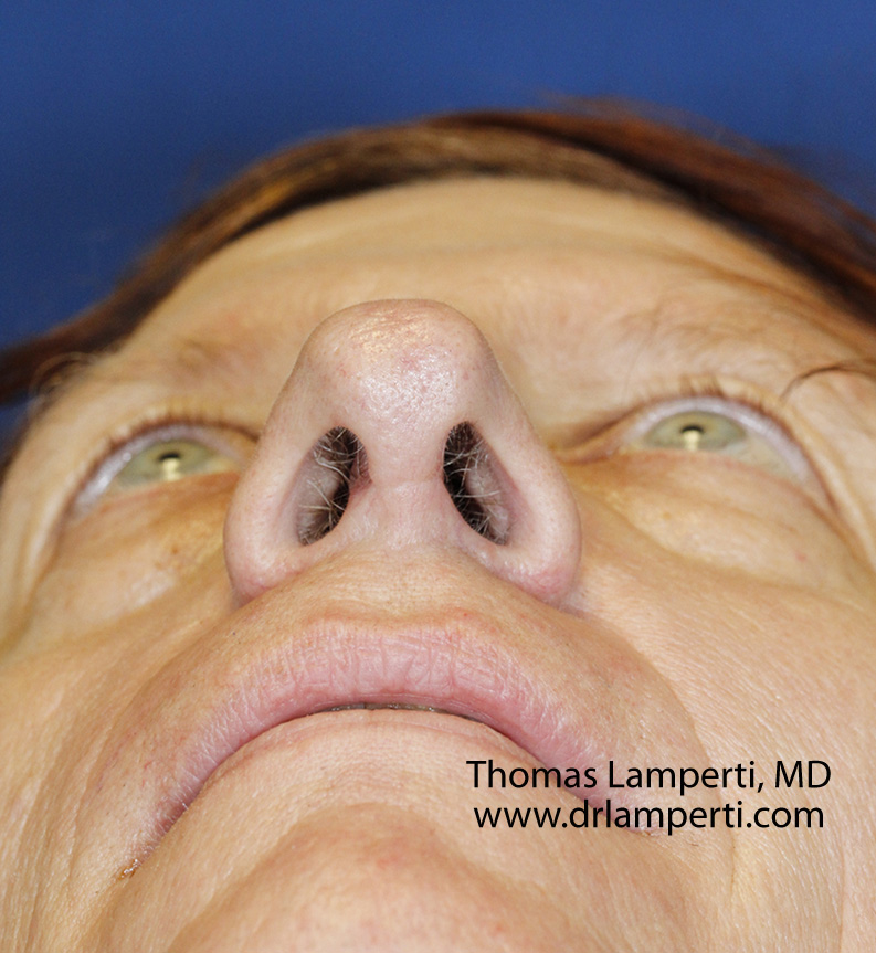 After Feminization Rhinoplasty Base