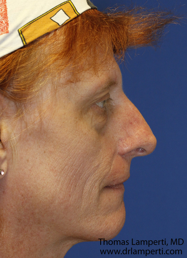 Before Feminization Rhinoplasty Profile