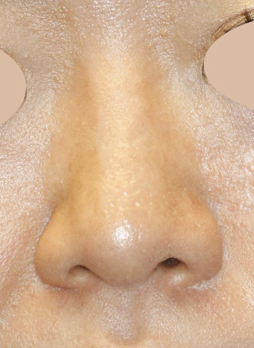 After Asian Rhinoplasty Frontal