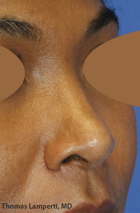 After Ethnic Rhinoplasty Oblique