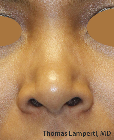 Before Ethnic Rhinoplasty Frontal