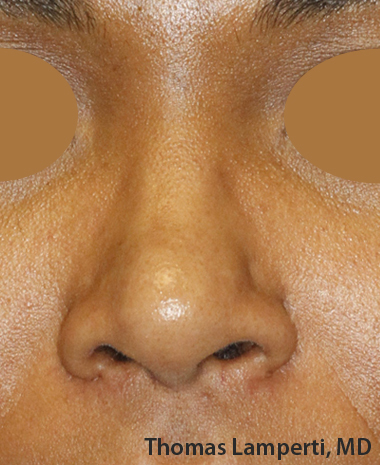 After Ethnic Rhinoplasty Frontal