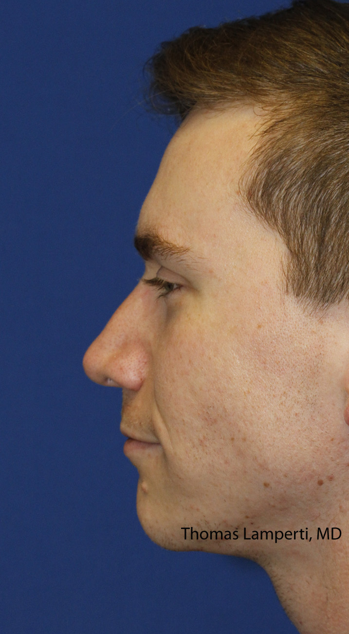 Rhinoplasty After Left Profile