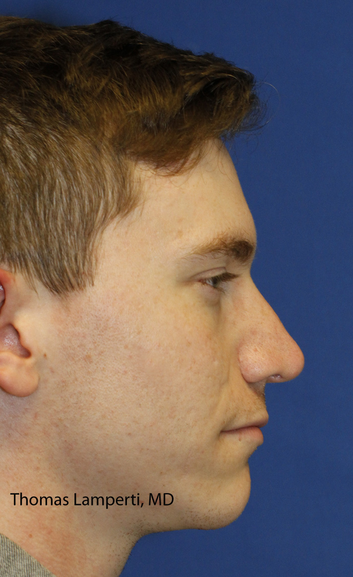 Rhinoplasty After ight Profile