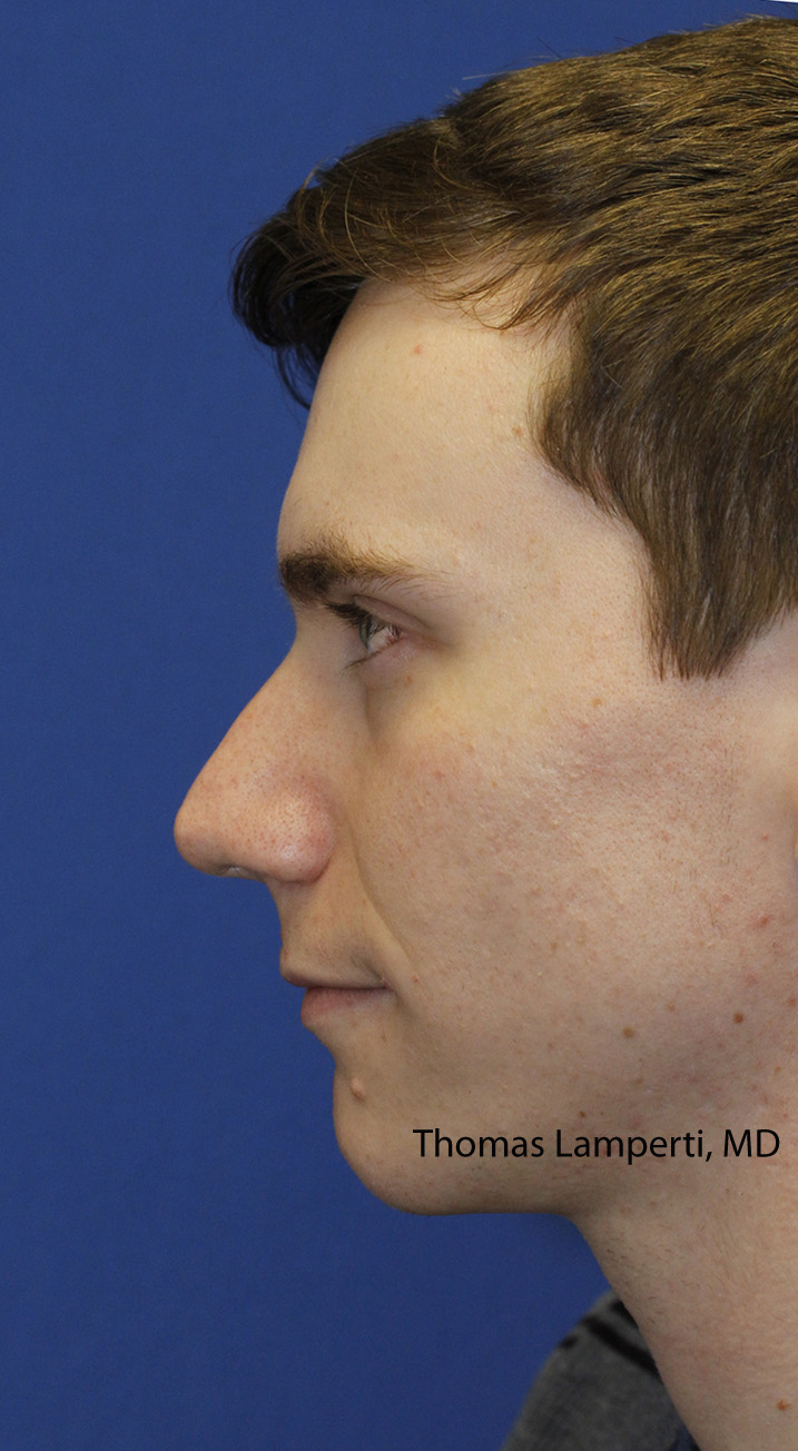 Rhinoplasty Before Left Profile
