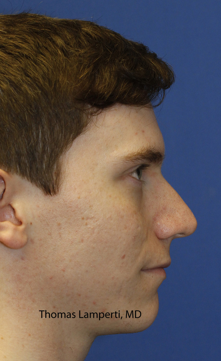 Rhinoplasty Before Right Profile