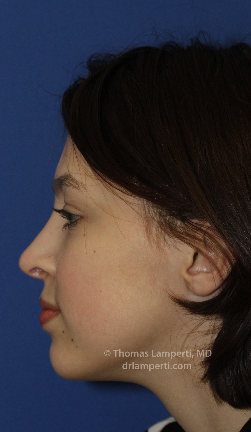 Rhinoplasty After L Profile