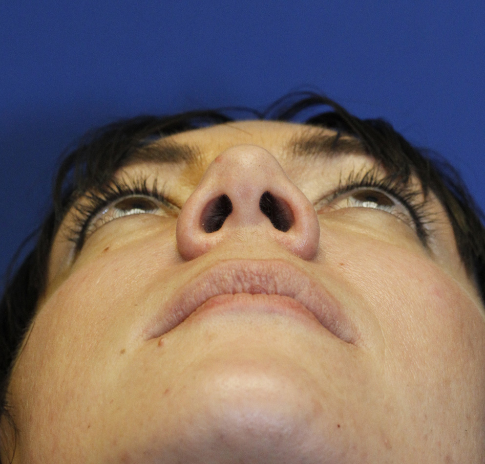 Rhinoplasty Before Base