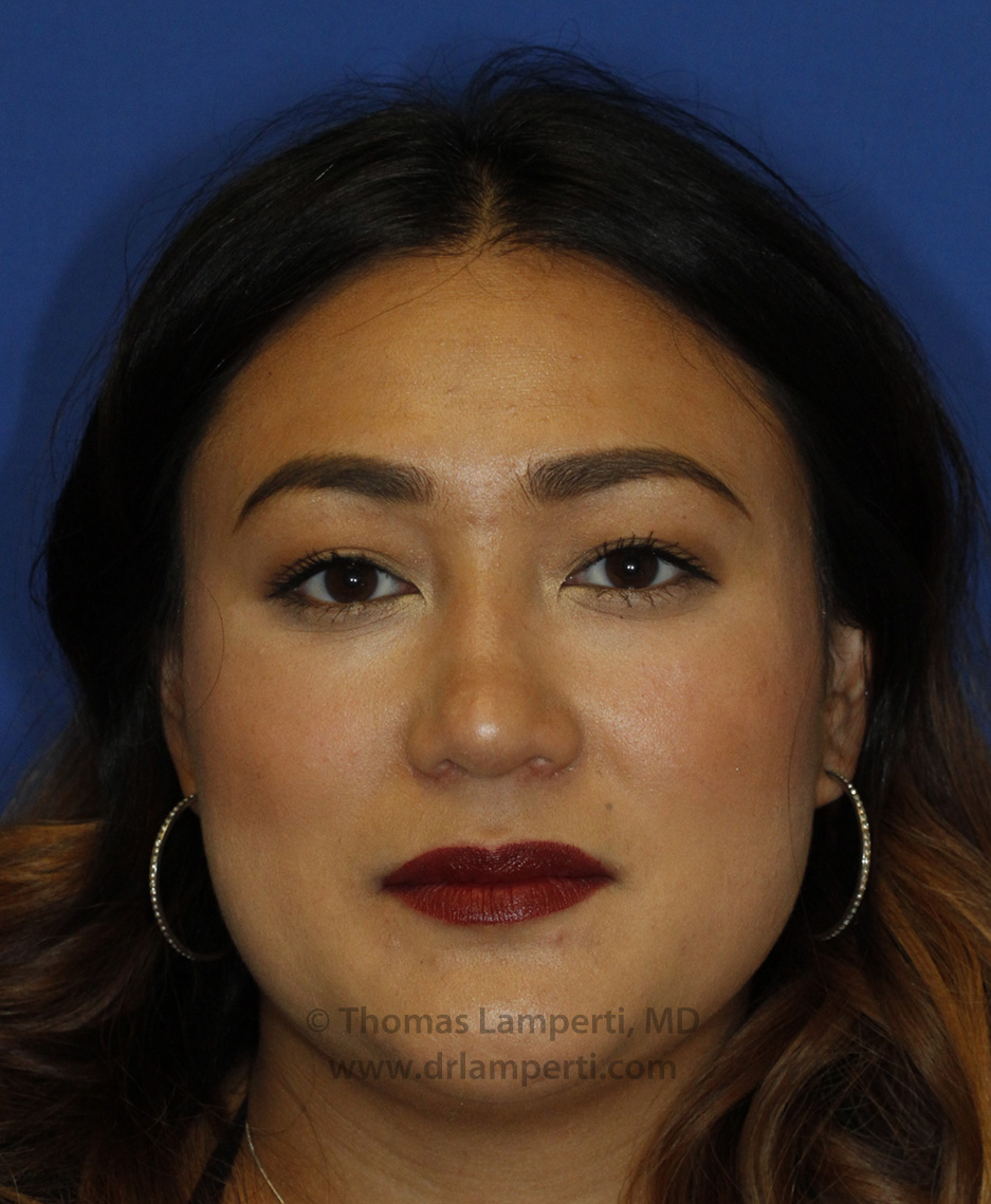 Rhinoplasty After Frontal