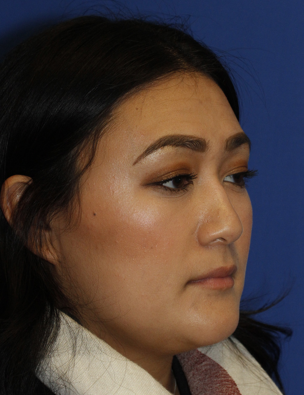 Rhinoplasty Before R Oblique