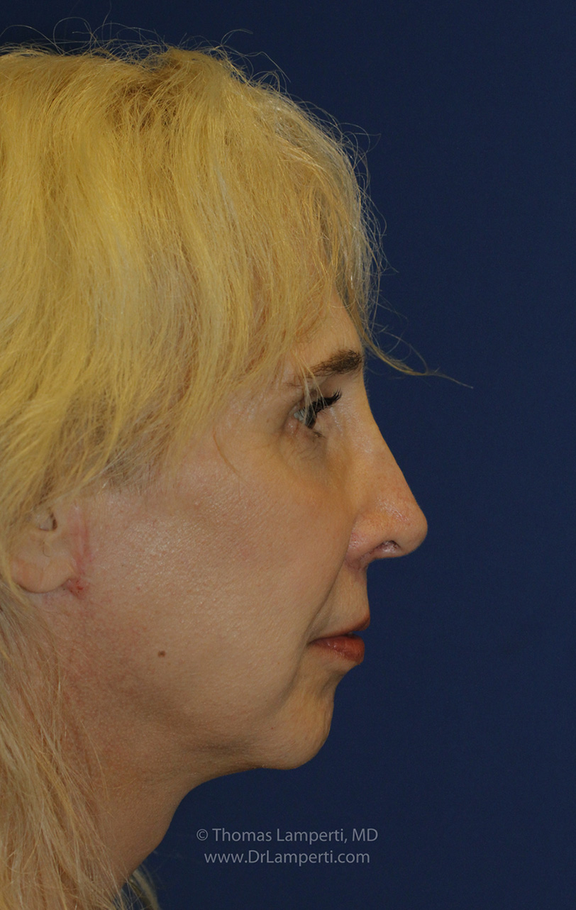 Feminization Rhinoplasty After R Profile