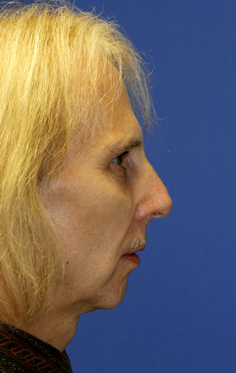 Feminization Rhinoplasty Before R Profile
