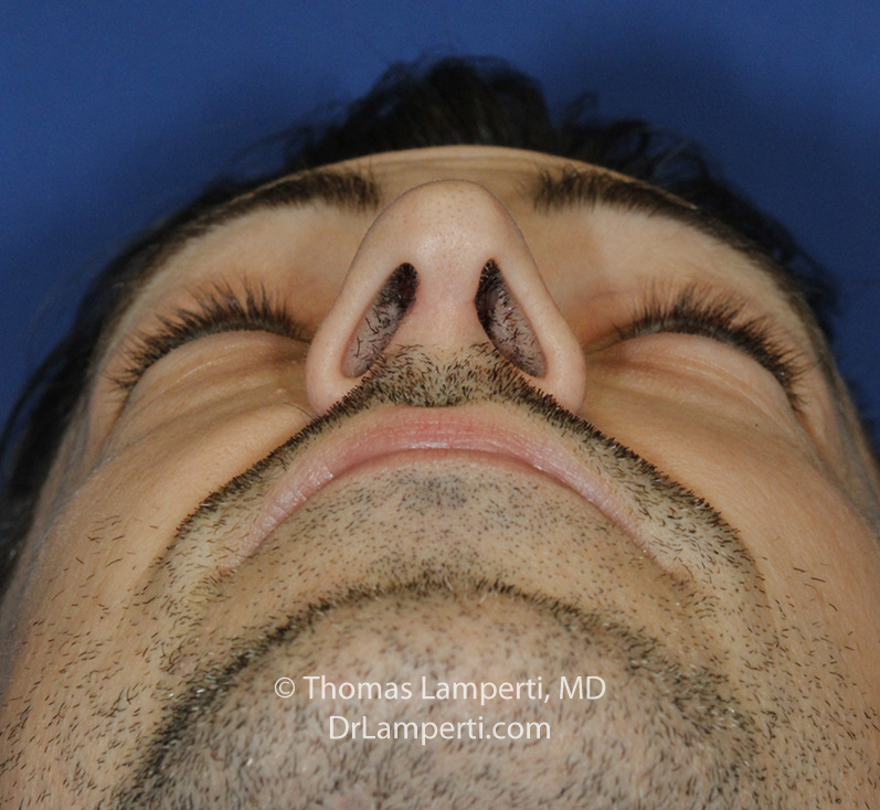 After Rhinoplasty Base