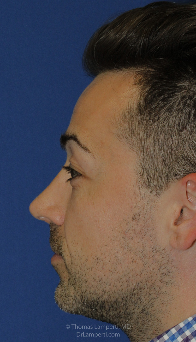 After Rhinoplasty L Profile