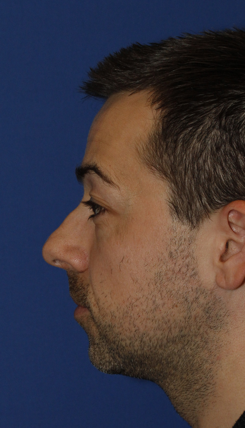 Before Rhinoplasty L Profile