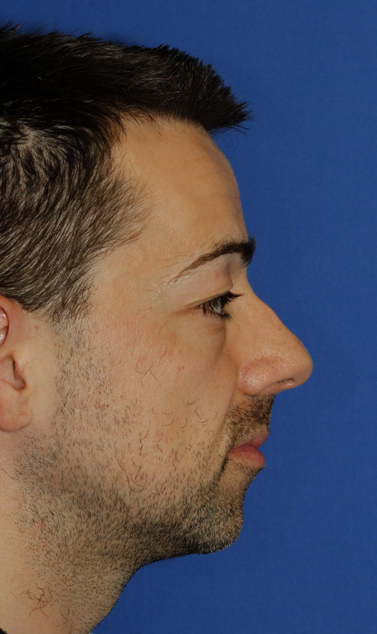 Before Rhinoplasty R Profile