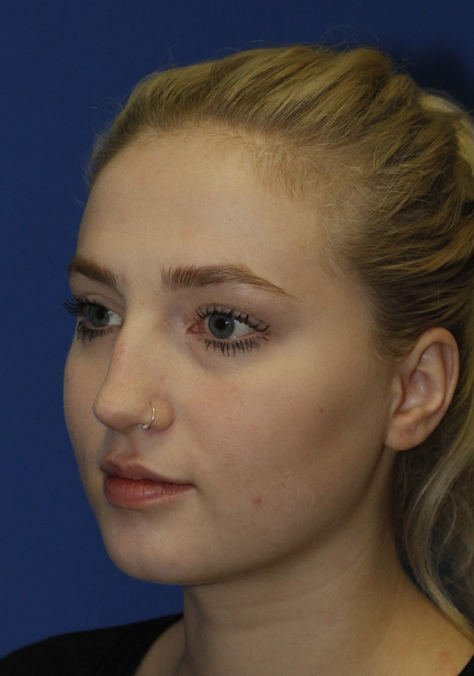 Rhinoplasty Before L Oblique