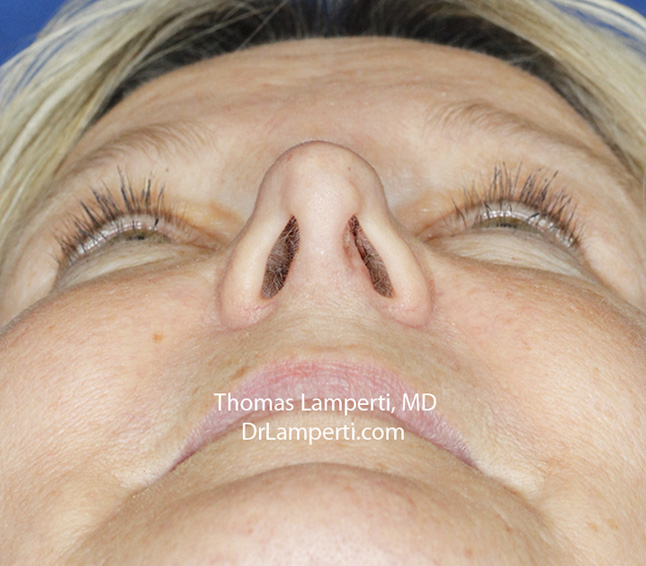 Rhinoplasty After Base