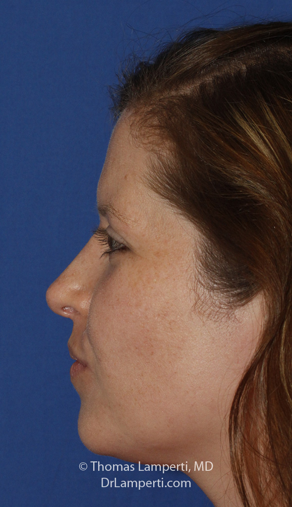Rhinoplasty L Profile After
