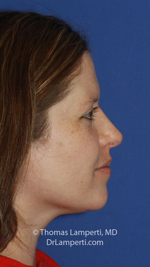 hinoplasty R Profile After