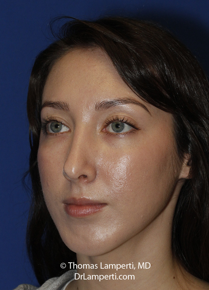 Rhinoplasty After L Oblique