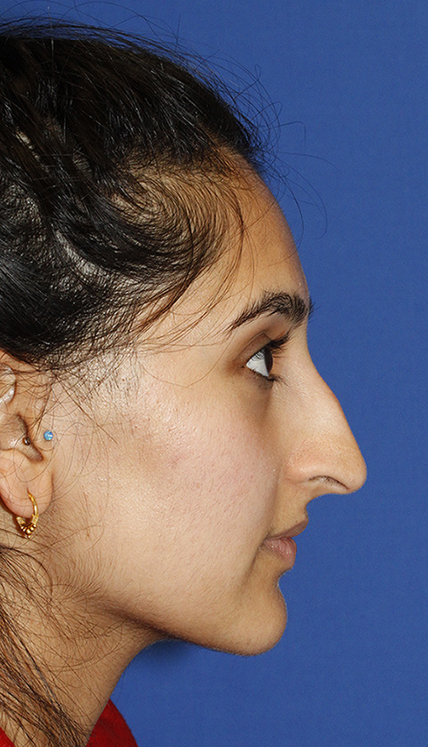 Rhinoplasty Before R Profile