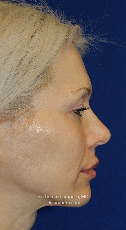Rhinoplasty After R Profile