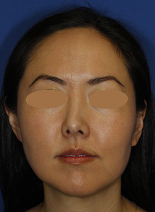 Rhinoplasty Before Frontal