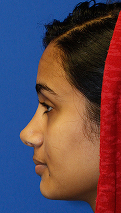 Indian rhinoplasty postop profile
