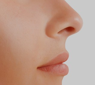 Rhinoplasty Treatments
