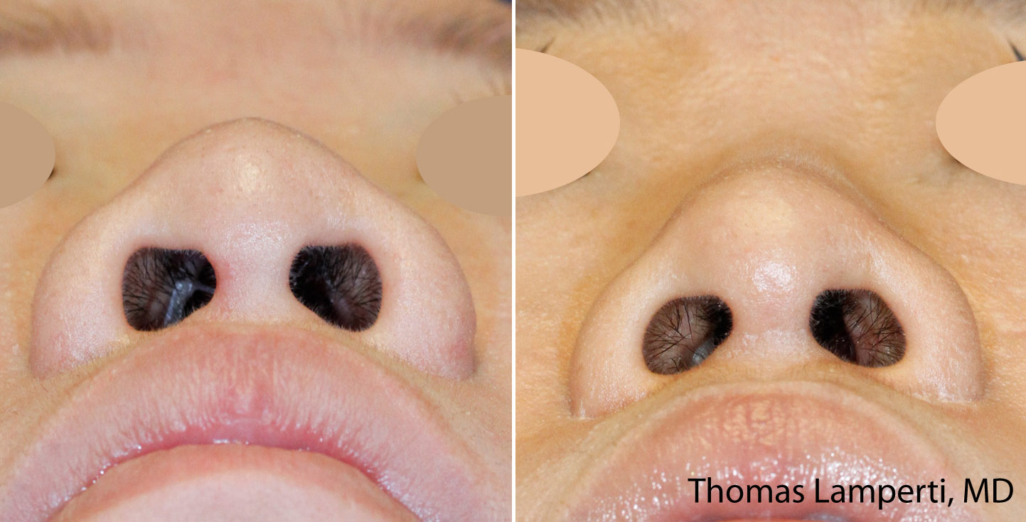 Asian rhinoplasty nostril reduction