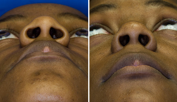 African American nostril reduction base view