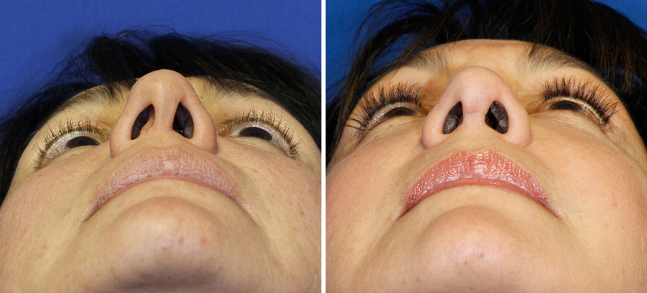 Asymmetric nostril before and after septal reconstruction