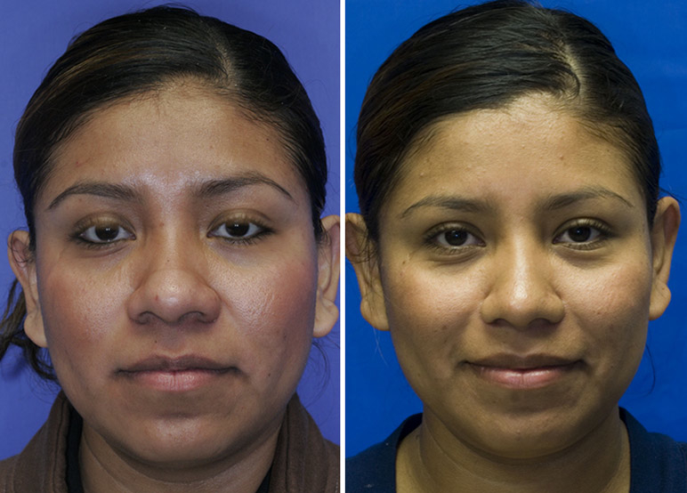 Hispanic bulbous tip rhinoplasty frontal view