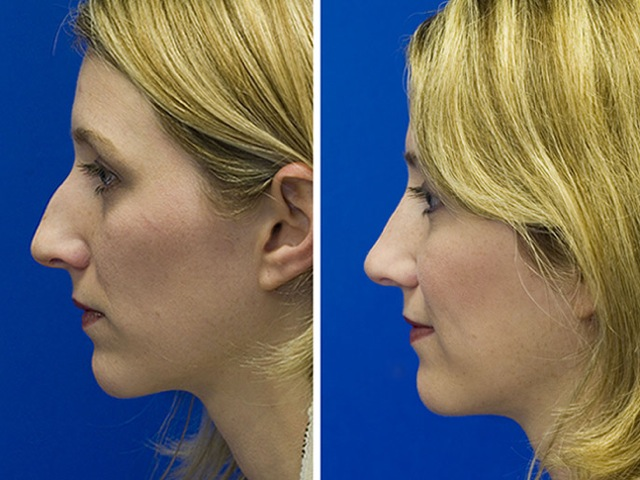 Before and after hump removal combined with cartilage radix grafting