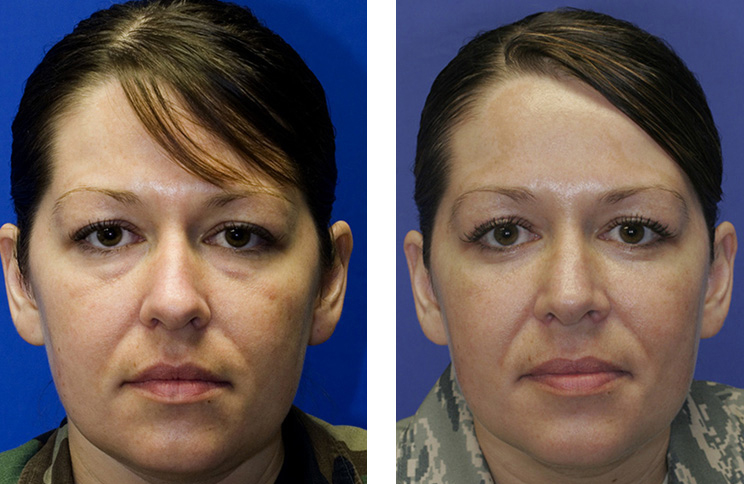 Patient 6 bulbous nose rhinoplasty and hump reduction frontal view