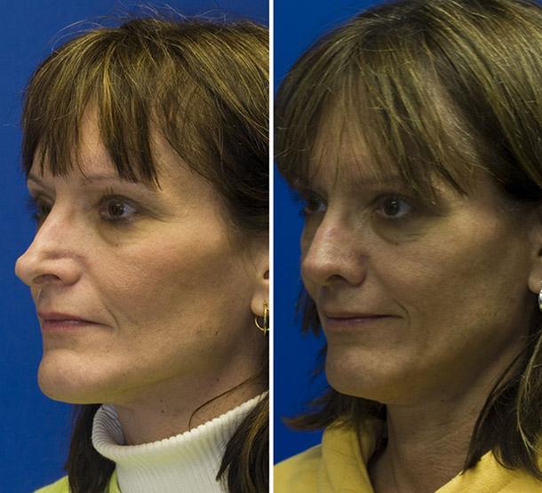 Revision rhinoplasty patient 5 oblique view