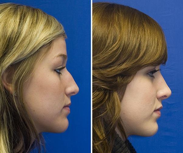 Patient 4 bony hump reduction profile