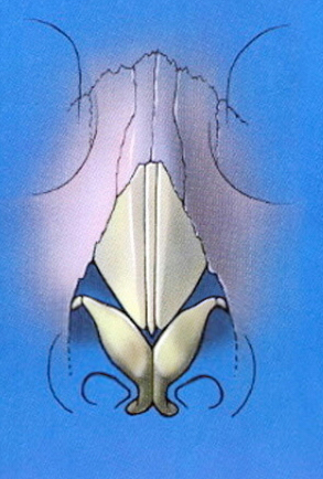 Schematic showing LLC cephalic positioning
