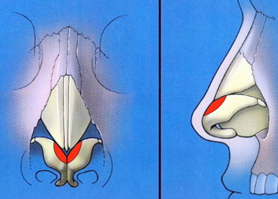 Cephalic trim of lower lateral cartilages schematic