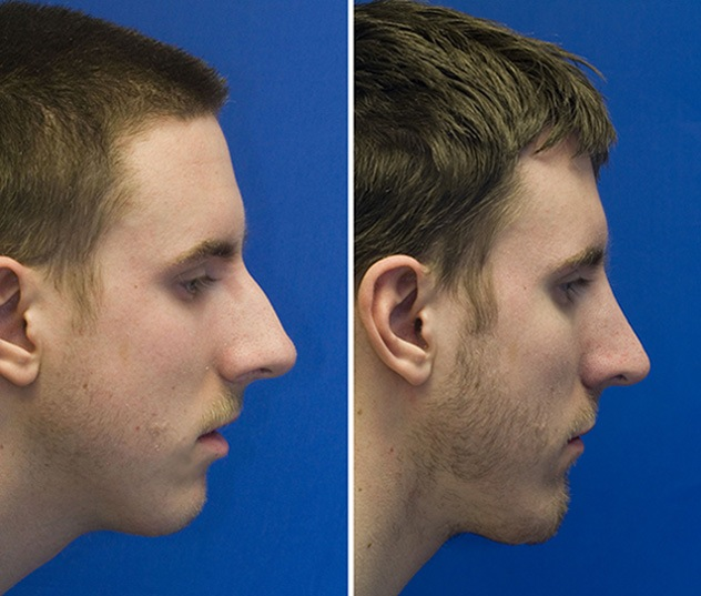 Combined radix grafting, hump reduction and chin implatation