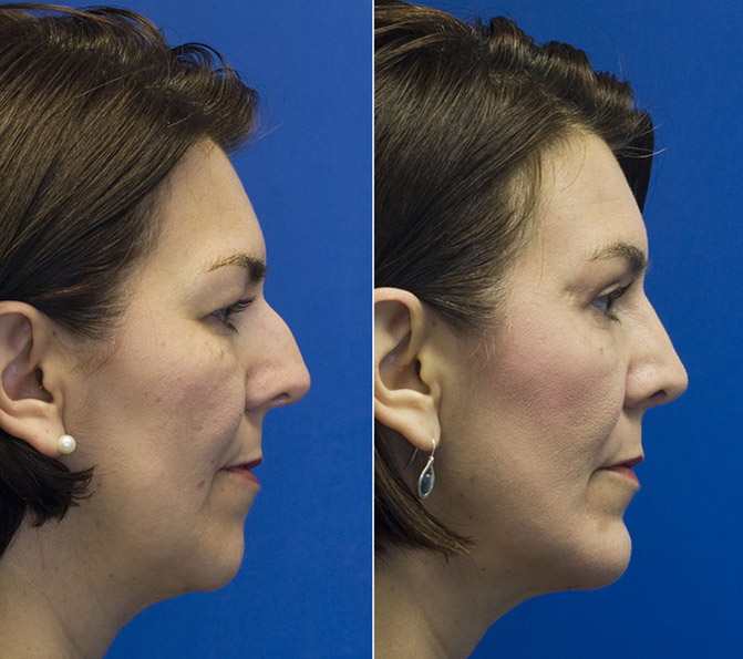 combined-chin-implant-sliding-genioplasty-and-blepharoplasty-patient-2-profile.jpg