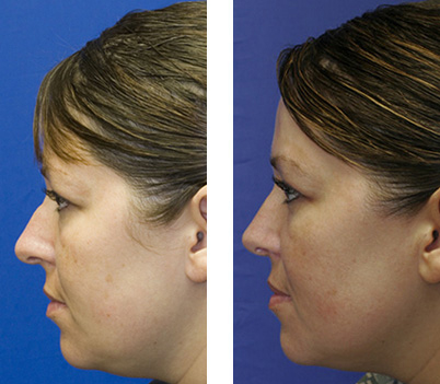 Patient 6 combined rhinoplasty and blepharoplasty before and after profile