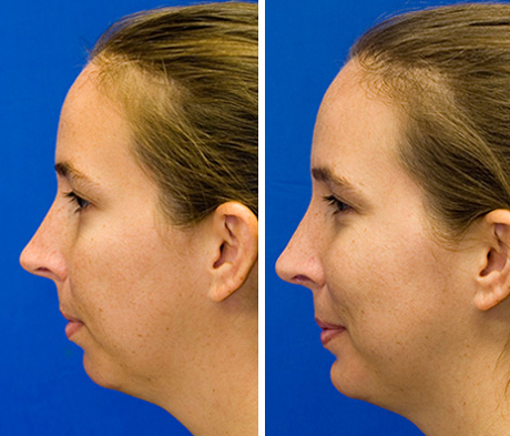 combined rhinoplasty and sliding genioplasty