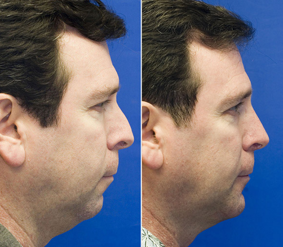 combined-sliding-genioplasty-and-rhinoplasty-patient-1-profile-photo.jpg