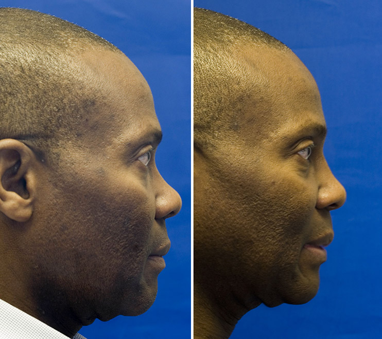 African American dorsal nasal augmentation with cartilage grafting